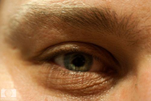 Eye 11-9-11