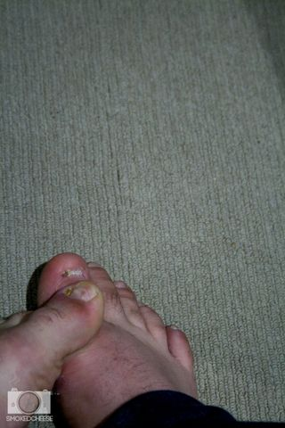 Toes 6-5-12